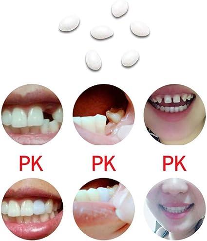 Pegamento Sólido Para Prótesis Dentales, Kit de Reparación ...