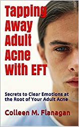 Tapping Away Adult Acne With EFT: Secrets to Clear Emotions at the Root of Your Adult Acne