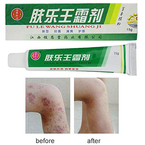 EDTara Herbal Material Psoriasis Creams Dermatitis And Eczema Pruritus Psoriasis Ointment 15g