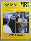 img - for Spinal MRI: A Teaching File Approach book / textbook / text book