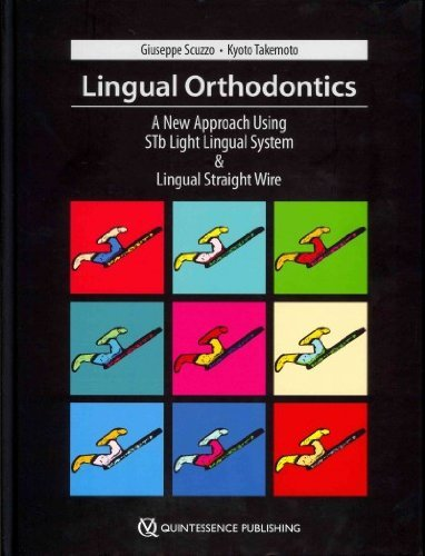 Lingual Orthodontics: A New Approach Using Stb Light Lingual System & Lingual Straight Wire (Systems Stb)
