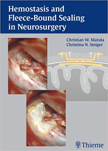 Hemostasis and Fleece-Bound Sealing in Neurosurgery - Kindle edition