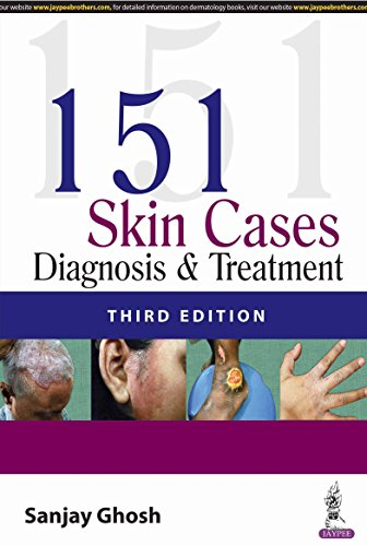 151 Skin Cases: Diagnosis and Treatment