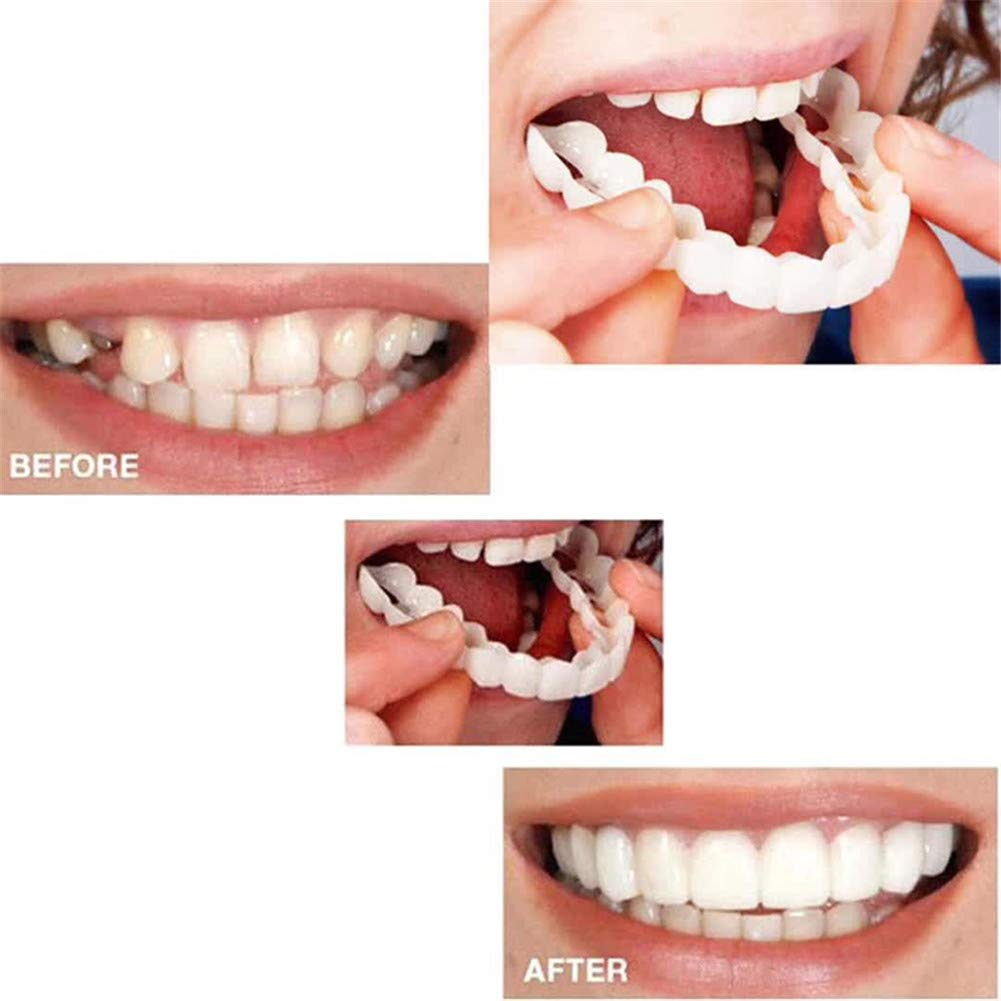 Fernando feliz 1 Piezas de odontología cosmética Broche instantáneo Sonrisa Comodidad Ajuste Dientes Flexibles chapas, Dientes Falsos para los Dientes se Ven Blancos y ordenados