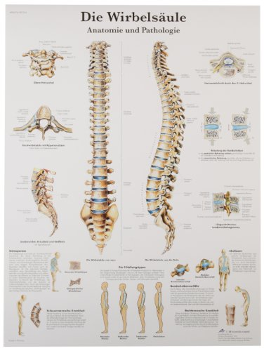 3B Scientific VR2152L Glossy UV Resistant Laminated Paper La Colonne Vertebrale, Anatomie Et Pathologie Allergies Chart (Spinal Column Anatomical Chart, French), Poster Size 20