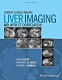img - for Liver Imaging: MRI with CT Correlation (Current Clinical Imaging) book / textbook / text book