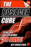 The Rosacea Cure: Clear Skin For Life In Only 30 Days!