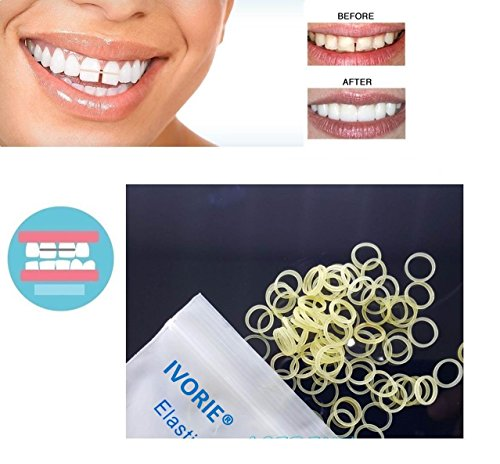 IVORIE Dental Orthodontic Rubber Bands Elastics Latex Braces Teeth Gap 100pcs (5/16'' Penguin 6.5oz (Heavy)) by IVORIE