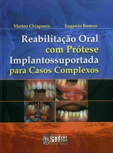 Read Online Reabilitação Oral com Prótese. Implantossuportada Para Casos Complexos (Em Portuguese do Brasil) pdf