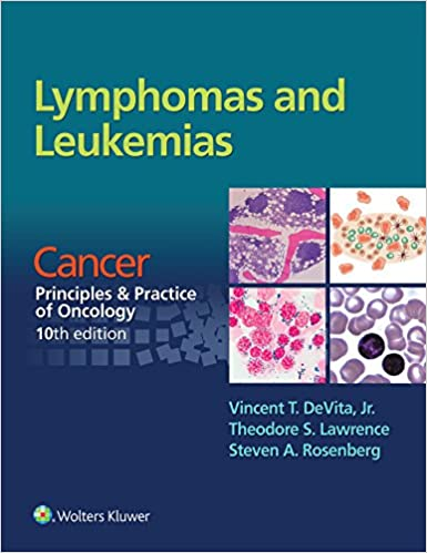 Amazon lymphomas and leukemias cancer principles practice lymphomas and leukemias cancer principles practice of oncology 10th edition 10th edition kindle edition fandeluxe Choice Image