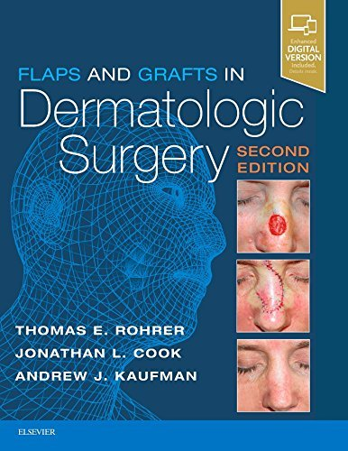 (Flaps and Grafts in Dermatologic Surgery )