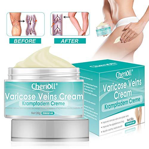 Varicose Veins Cream Varicose