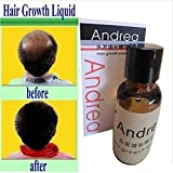 Mf Cosmetics Andrea Hair Loss Serum Product for Unisex, Men, Women Thickening, 20ml(hair Growth 15 Days)