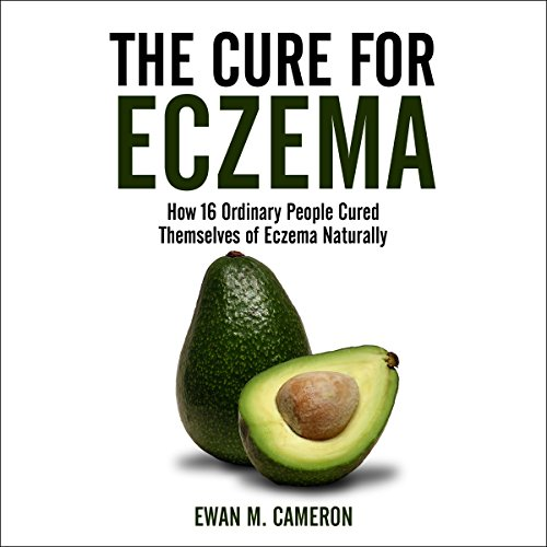The Cure for Eczema: How 16 Ordinary People Cured Themselves of Eczema Naturally