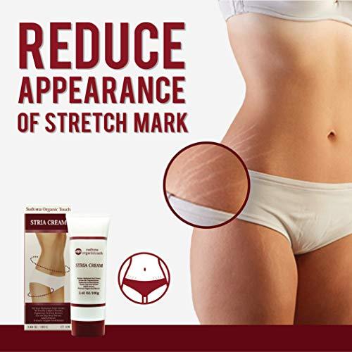 STRIA Natural Stretch Marks, Scar & Dark Spot Remover | Stretch Mark Cream for Skin Hydration, Exfoliation, Tightening & Collagen Boost | Pregnancy Belly Care for Prenatal-Postnatal & Pregnant | 3 pcs by GreenTouch (Image #2)