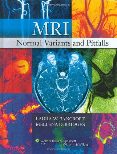 MRI Normal Variants and Pitfalls