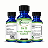 Acne & Pimples Solution a Natural Acne Treatment for Men, Women, Teens and Infants for Pimples of the Face and Body Helps Clear Cystic Acne, Prevents new Pimples and Reduces Acne Scarring, (BM38)