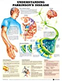 Understanding Parkinson's Disease Anatomical Chart, Anatomical Chart Company Staff, 1587793547