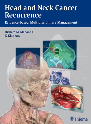 Head and Neck Cancer Recurrence Evidence-based, Multidisciplinary Management (1st 2012) [Mehanna & Ang]