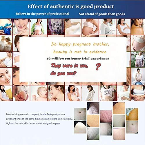 Bianco Portatile Rimuovi Smagliature Universal Women Beauty Scar Cream Gravidanza Repairing Maternity Cream Skin Care