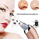 Teepao Blackhead Remover Pro Vacaum,Electric Comedone Extractor Tool Comedo Suction Microdermabrasion Machine Beauty Device for Facial Skin Treatment for Men Women
