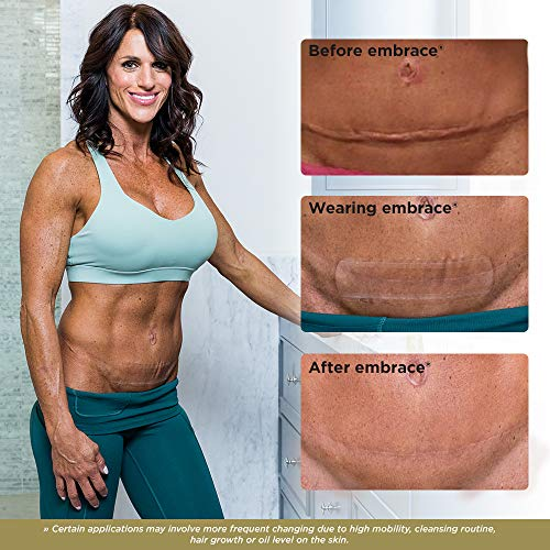 Embrace Active Scar Defense for New Scars FDACleared Silicone Scar Sheets SIZE XL 30 Day Supply