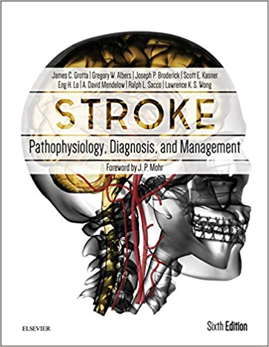 Stroke e book pathophysiology diagnosis and management stroke stroke e book pathophysiology diagnosis and management stroke pathophysiology diagnosis and management kindle edition by james c grotta fandeluxe Image collections