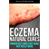 Eczema Natural Cures: Proven Self-Care Guide & Diet That Really Work (Top Rated 30-min Series)