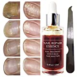 Fanmin Toenail and Nail Repair Essence, Remove