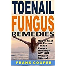 Toenail Fungus Remedies: How to Treat and Reverse Toenail Fungus Naturally -- WITHOUT Drugs or Surgery!