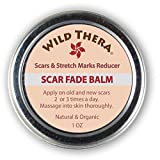 Concentrated Scar Remover for Stretch Marks, Acne Scar Removal, Pregnancy Scars, Surgery Scars, Sun Spots & Pock Marks. Herbal Scar Cream with Coconut Oil, Shea, Cocoa Butter, Jojoba Oil, Avocado Oil.