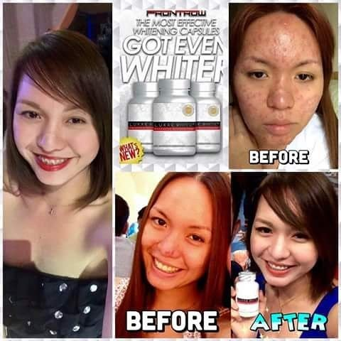 Luxxe White Glutathione and Luxxe Protect for Intense Whitening