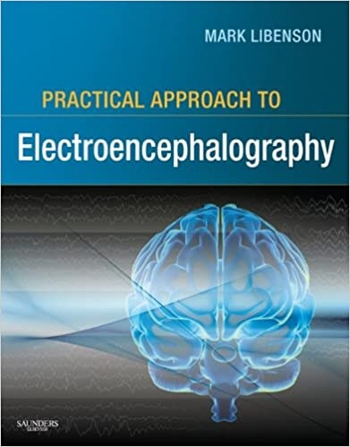 Practical approach to electroencephalography e book kindle edition practical approach to electroencephalography e book kindle edition by mark h libenson professional technical kindle ebooks amazon fandeluxe Image collections