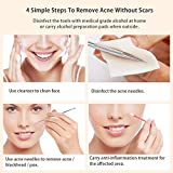 BESTOPE Blackhead Remover Pimple Comedone Extractor Tool Best Acne Removal Kit - Treatment for Blemish, Whitehead Popping, Zit Removing for Risk Free Nose Face Skin with Metal Case