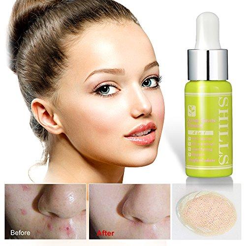 SHILLS Sulfur acne treatment, oil control, Acids & Peels, Anti Acne, acne treatment, acne toner, Sulfur, sulfur acne, Pore Control