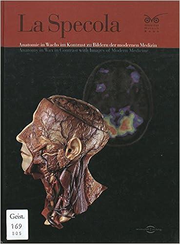 Anatomie In Wachs Im Kontrast Zu Bildern Der Modernen Medizin   Anatomy In  Wax In Contrast With Images Of Modern Medicine.: 9783924183974: Amazon.com:  Books