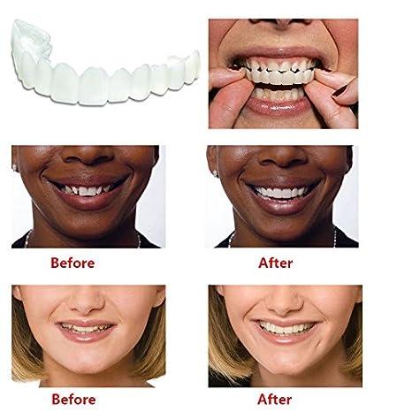 Dientes Falsos Sonrisas chapas Etiqueta Blanqueamiento Dental LanLan Dientes Falsos para disimular Defectos de Dientes