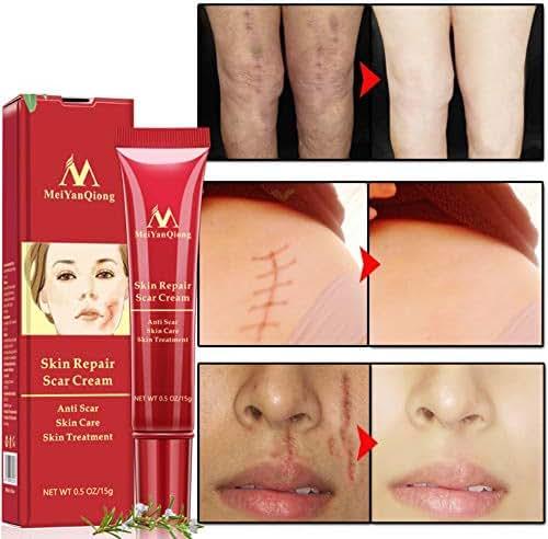 Skin Repair Scar Removal Cream Scars Burns Acne Treatment Cream