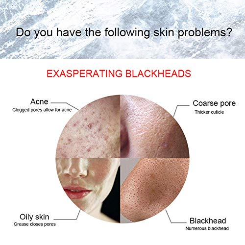Household Electric Suck Blackhead Instrument Pore Cleaner Get Rid of Acne Oily Exfoliation Shrink Pores by RSTJPG (Image #3)
