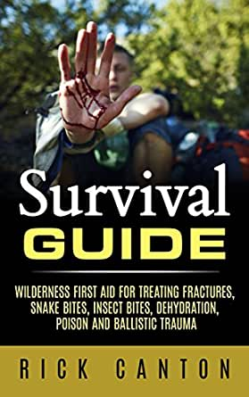 Amazon.com: Survival Guide: Wilderness First Aid For ...
