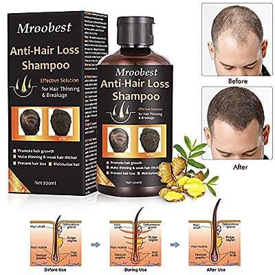 Anti-Hair Loss Shampoo Hair