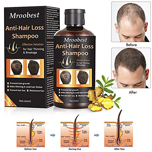 Anti-Hair Loss Shampoo, Hair Regrowth Shampoo, Natural Old Ginger Hair Care Shampoo Effective Solution for Hair Thinning & Breakage - Organic Hair Regrowth.Products for Men & Women (Best Product For Hair Loss Treatment)