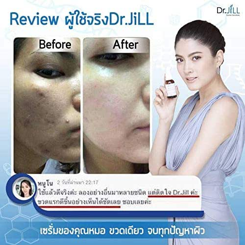 Dr.jill G5 Essence Whitening Anti-aging Moisturizing Skin, Doctor Solutions Whitening, Anti-aging, Moisturizing, Skin. Smooth and Antioxidant and Provides.Net.30ml / 1.01 Fl.Oz.