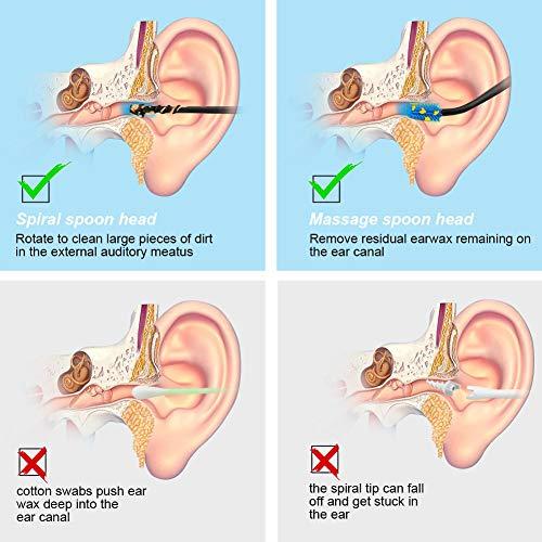 Ear Wax Remover zum Reinigen und Massieren der Ohren Vicloon Ohrreiniger 5 St/ück Ohrreiniger f/ür Babys mit Aufbewahrungskiste und Reinigungsb/ürste Ohrenschmalz Entferner Ohrenreiniger
