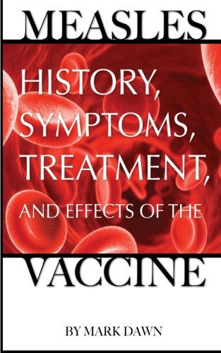 Measles: History, Symptoms, Treatment, and Effects of the Vaccine