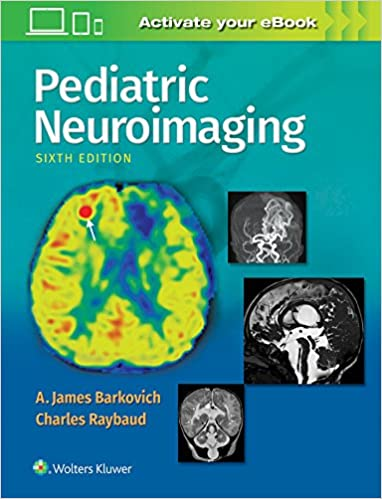 Pediatric Neuroimaging por A. James Barkovich Md epub