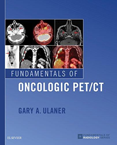 Fundamentals of Oncologic PET/CT (Fundamentals of Radiology) (English Edition)