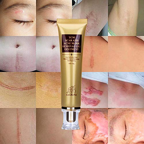 Tcm Acne Scar Removal Cream Kobwa Scar Cream Skin Repair Cream