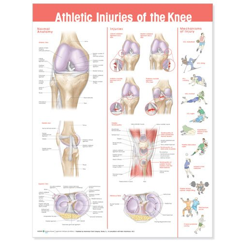 Athletic Injuries of the Knee Anatomical Chart Lippincott Williams & Wilkins 9780781786751 VIB0781786754 Medical / Nursing ANF: Health and Wellbeing Anatomy Clinical Medicine: Professional Education & Training MEDICAL / Family & General Practice Non-Fictio