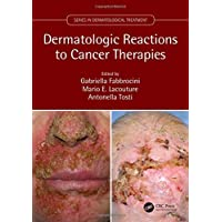 Dermatologic Reactions to Cancer Therapies (Series in Dermatological Treatment)